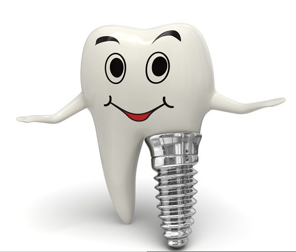 Are Dental Implants Really the Right Choice for Me?